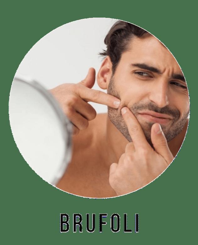 inestetismi della pelle i brufoli uomo e donna e i prodotti per eliminarli