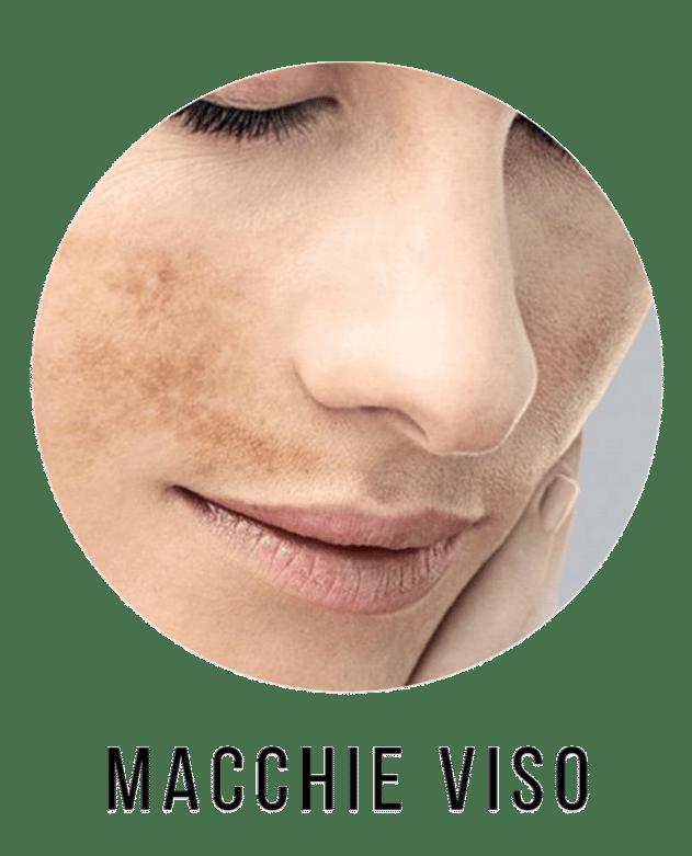 inestetismi della pelle prodotti di bellezza donna e uomo per macchie viso